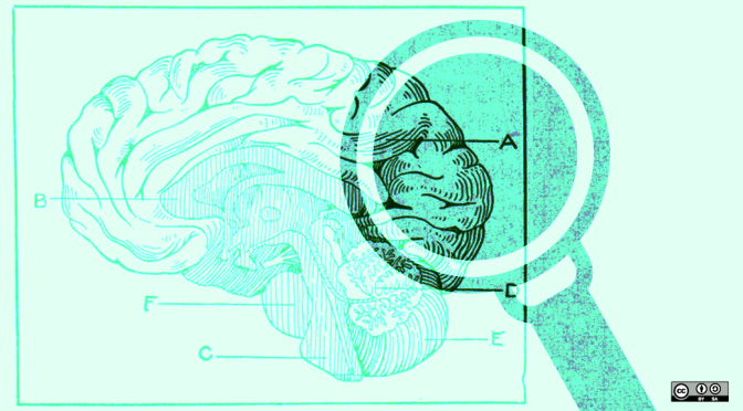 What is different in the bilingual brain?